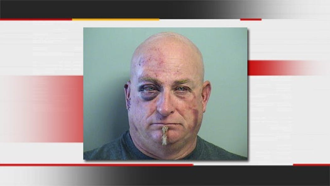 Second Arrest Made In Collinsville Finger-Biting Incident